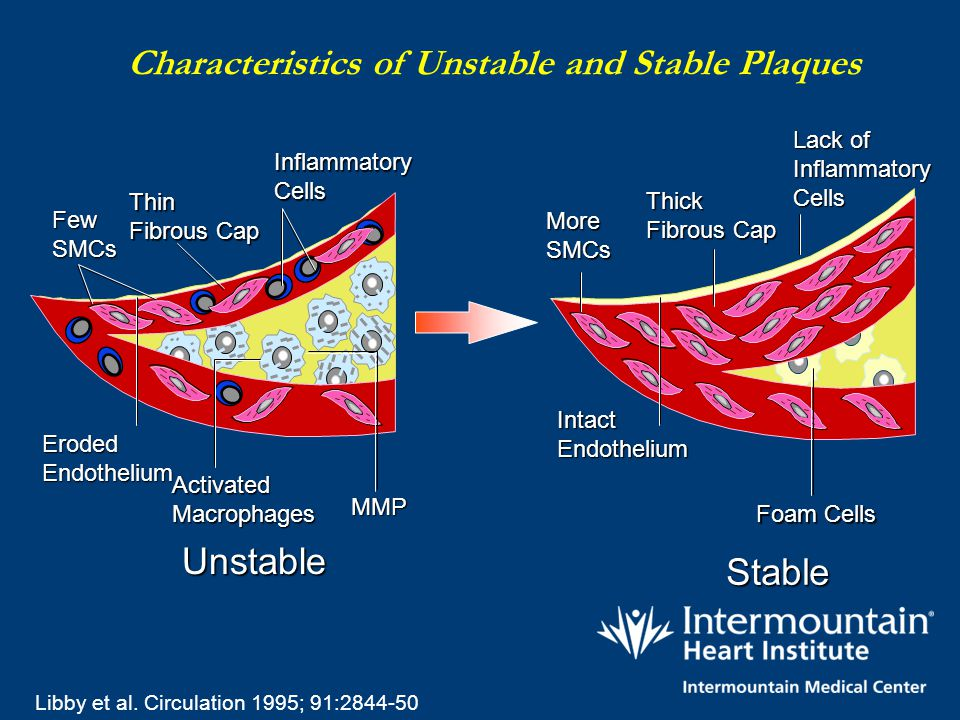 Characteristics of Unstable and Stable Plaques