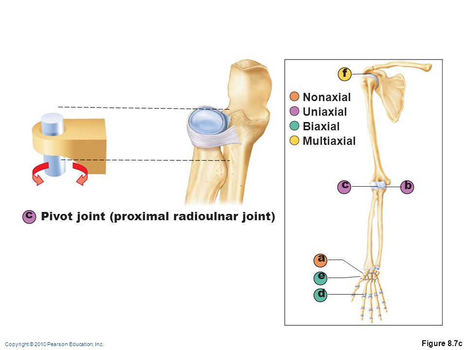 Pivot joint (proximal radioulnar joint)