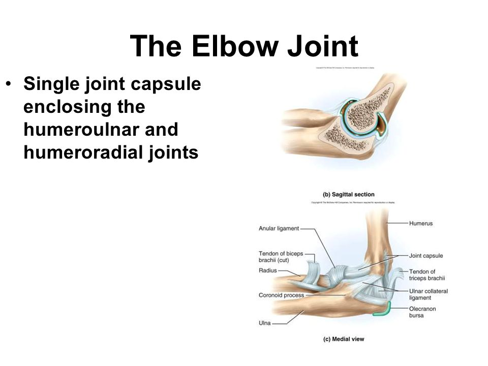 The Elbow Joint Single joint capsule enclosing the humeroulnar and humeroradial joints