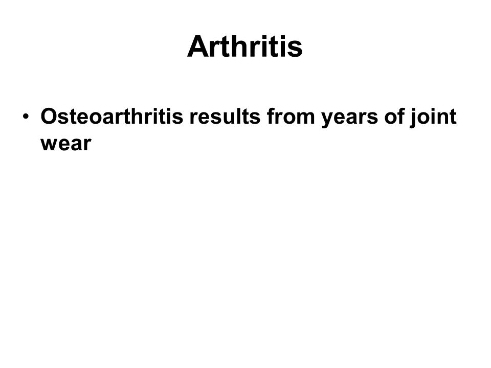 Arthritis Osteoarthritis results from years of joint wear