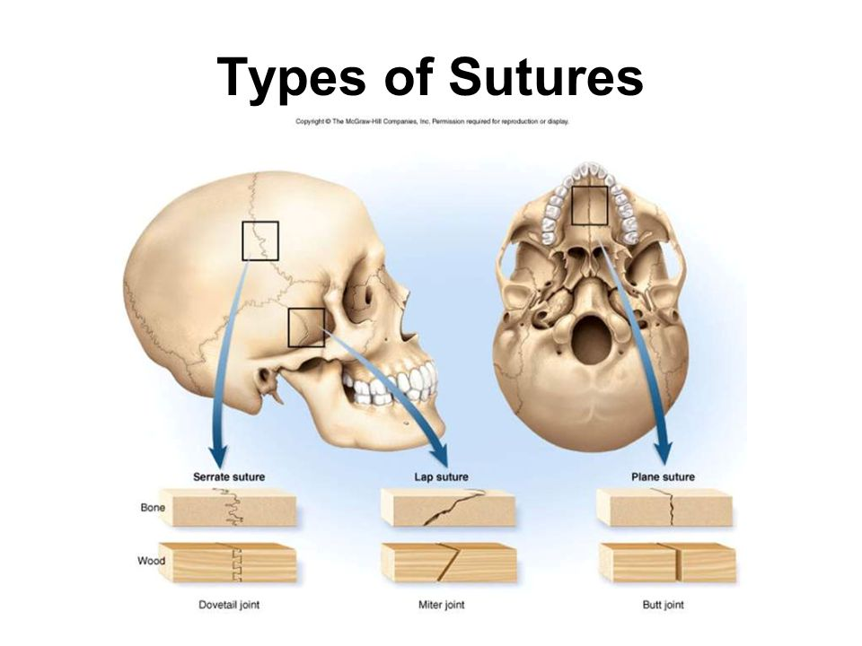 Types of Sutures