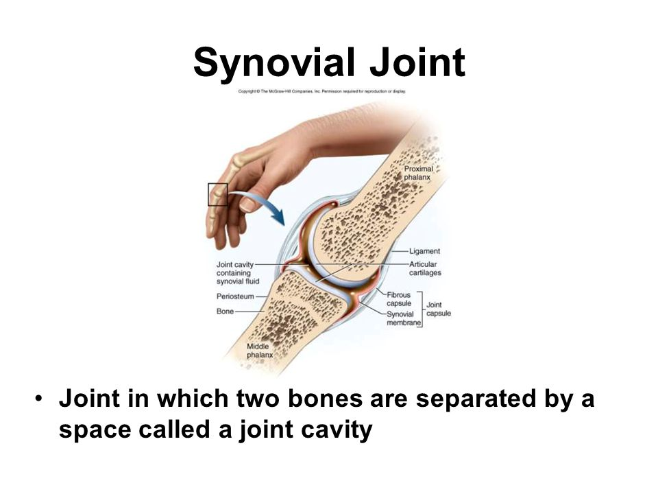 Synovial Joint Joint in which two bones are separated by a space called a joint cavity