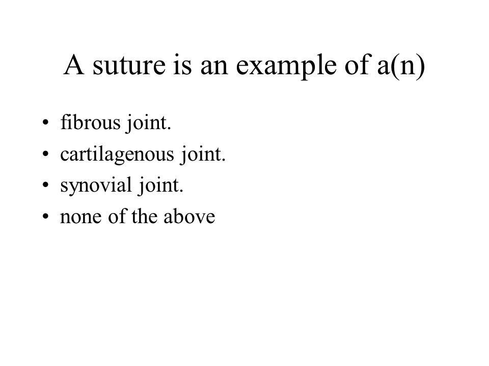 A suture is an example of a(n)