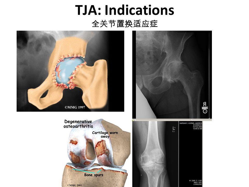 TJA: Indications 全关节置换适应症