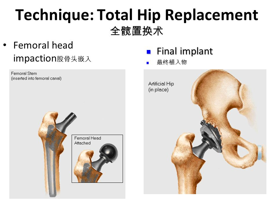 Technique: Total Hip Replacement 全髋置换术