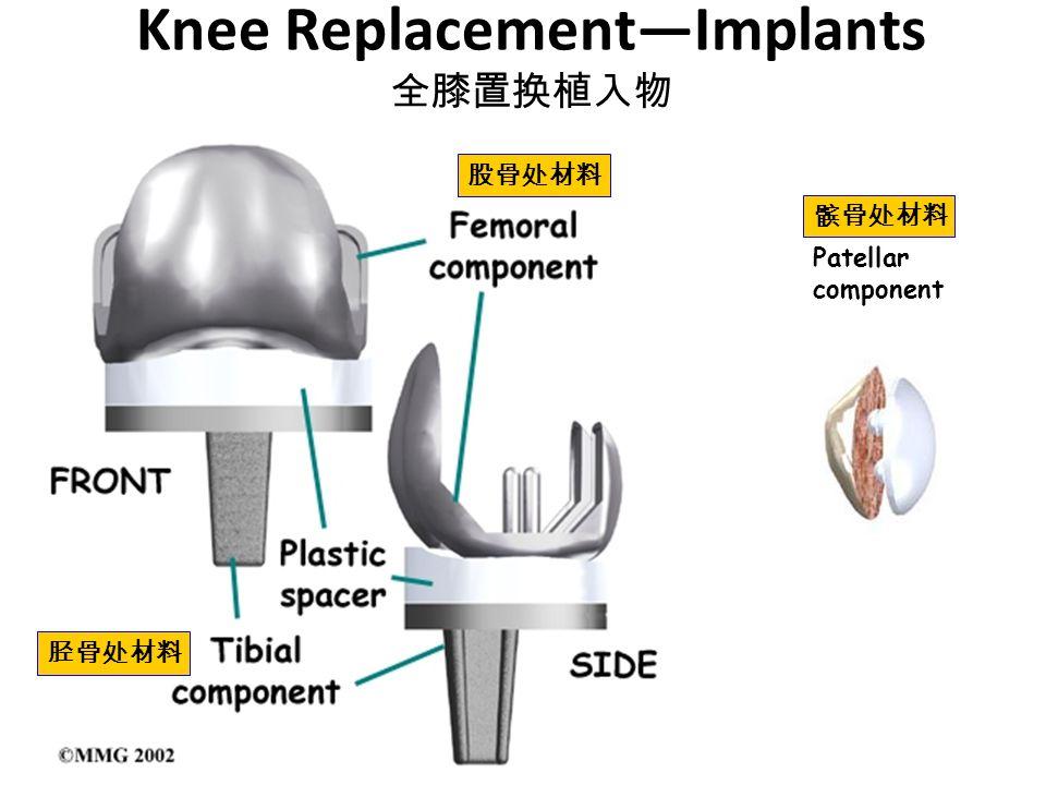 Knee Replacement—Implants 全膝置换植入物