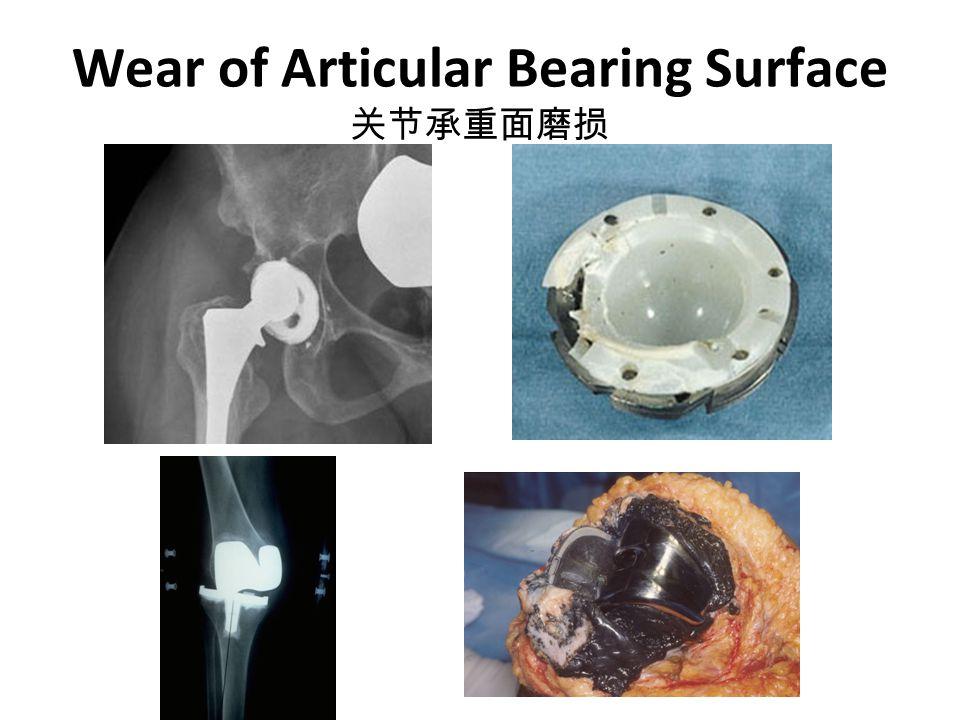 Wear of Articular Bearing Surface 关节承重面磨损
