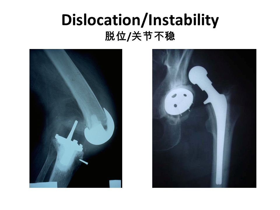 Dislocation/Instability 脱位/关节不稳