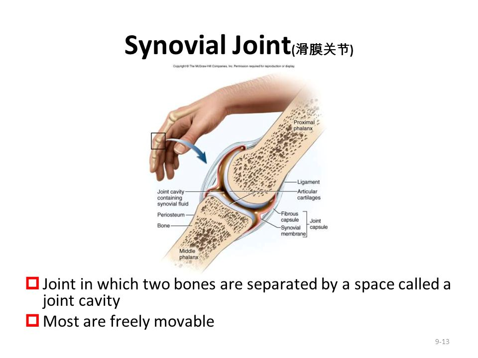Synovial Joint(滑膜关节) Joint in which two bones are separated by a space called a joint cavity. Most are freely movable.