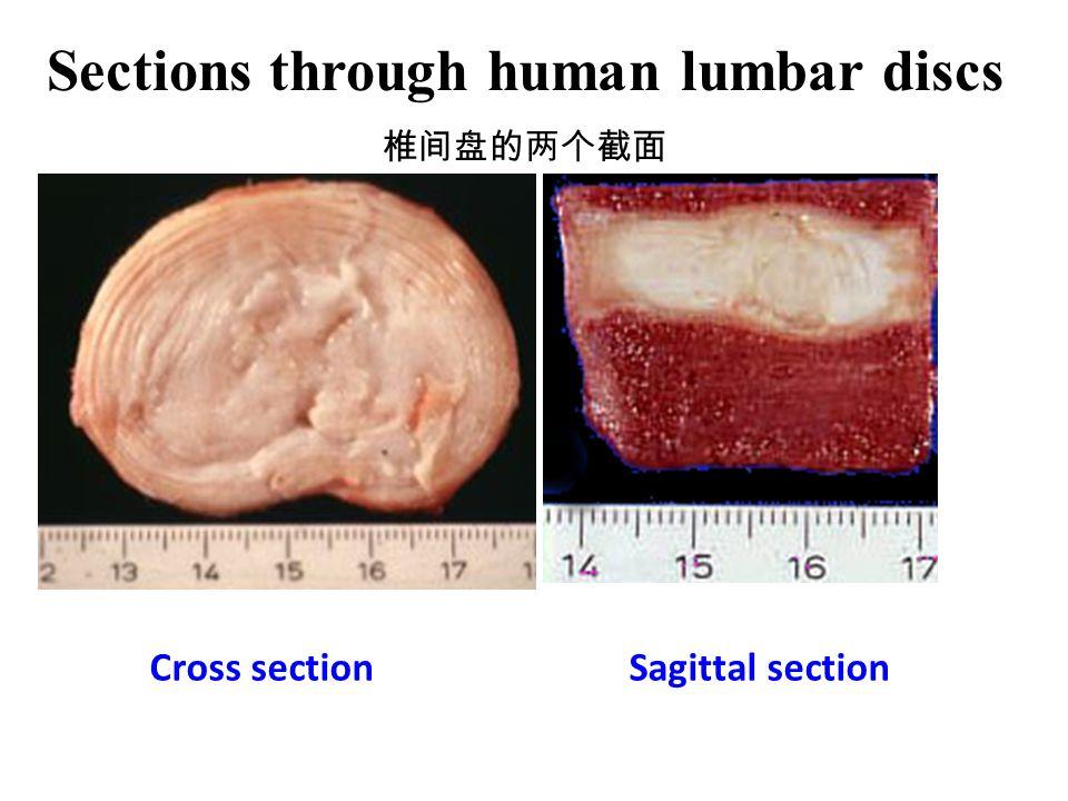 Sections through human lumbar discs
