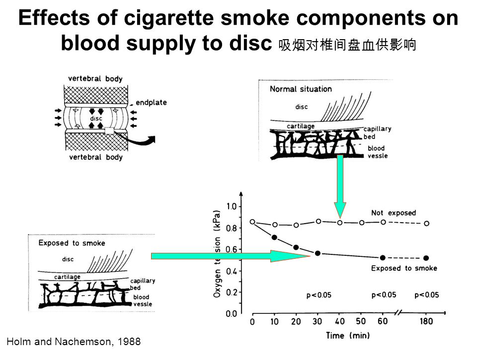 Effects of cigarette smoke components on blood supply to disc 吸烟对椎间盘血供影响