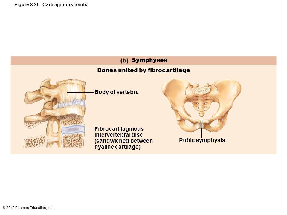 Bones united by fibrocartilage