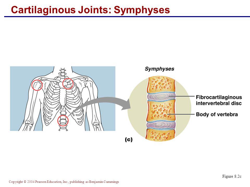 Cartilaginous Joints: Symphyses