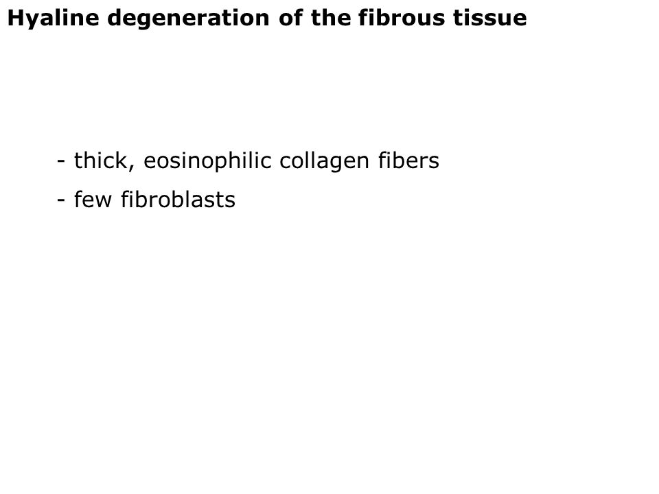 Hyaline degeneration of the fibrous tissue