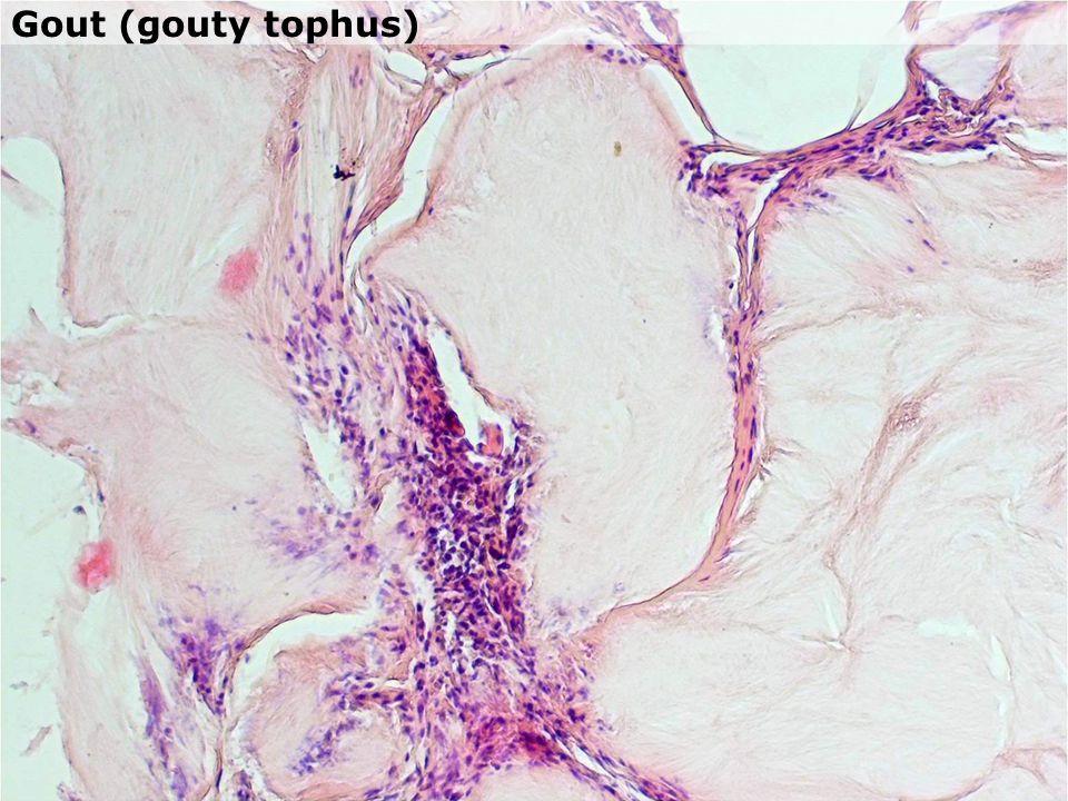 Gout (gouty tophus)