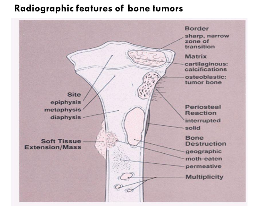 Radiographic features of bone tumors