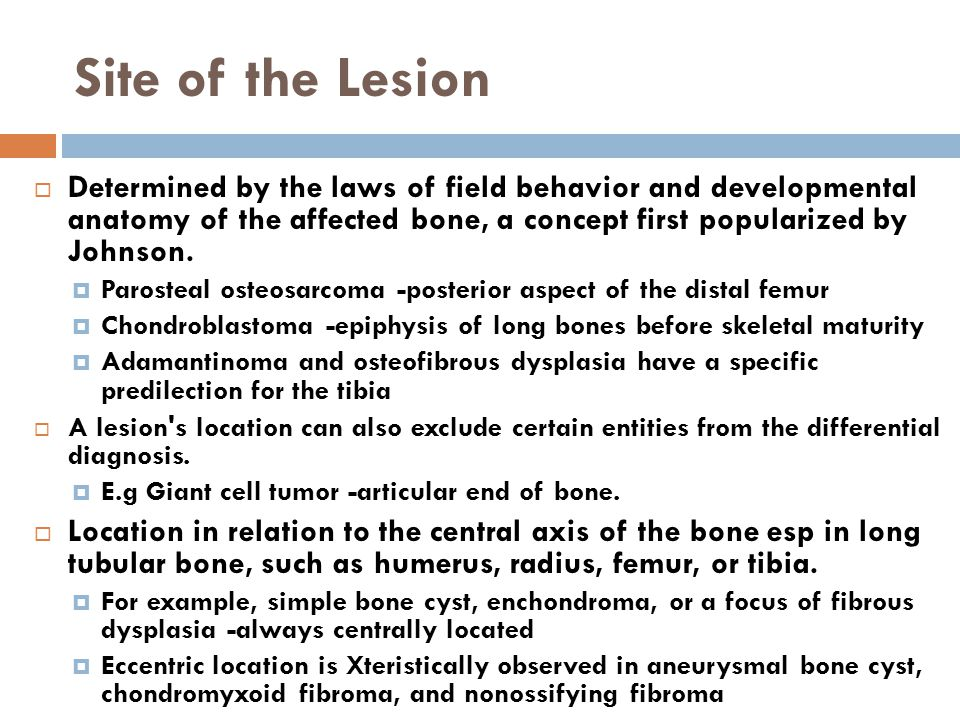 Site of the Lesion Determined by the laws of field behavior and developmental anatomy of the affected bone, a concept first popularized by Johnson.