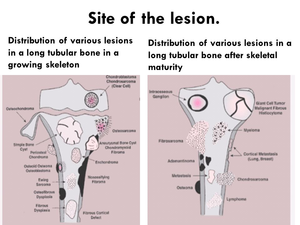 Site of the lesion. Distribution of various lesions in a long tubular bone in a growing skeleton.