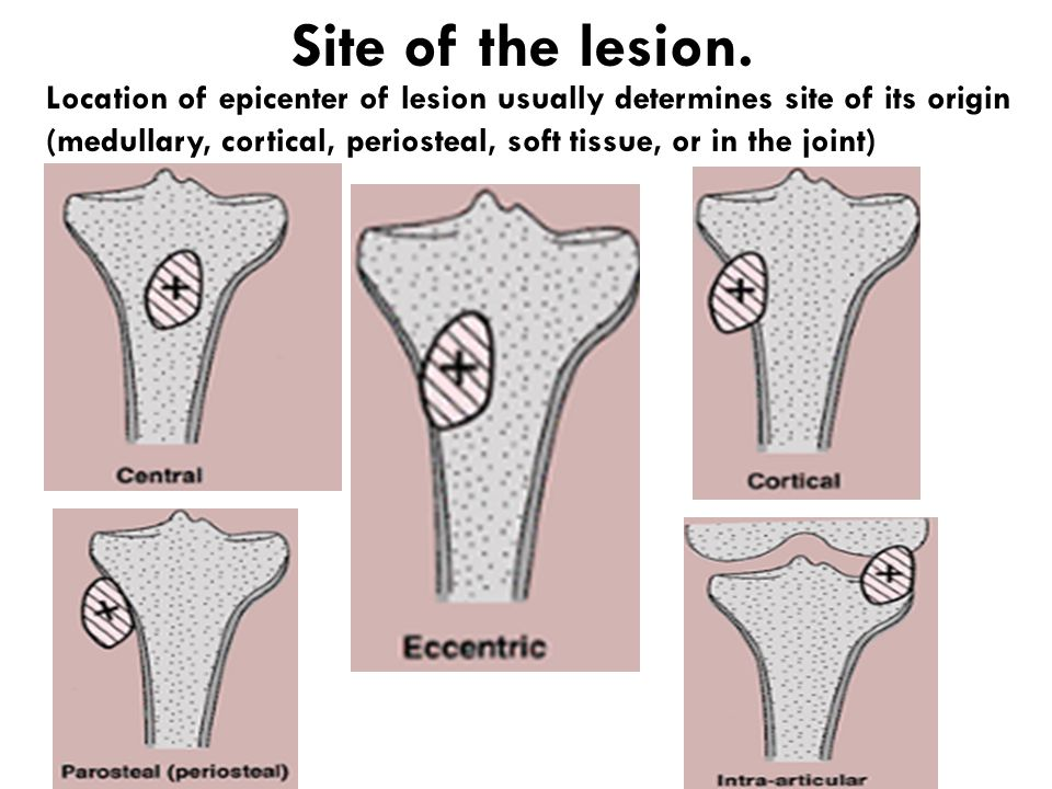 Site of the lesion.