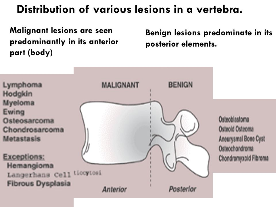 Distribution of various lesions in a vertebra.