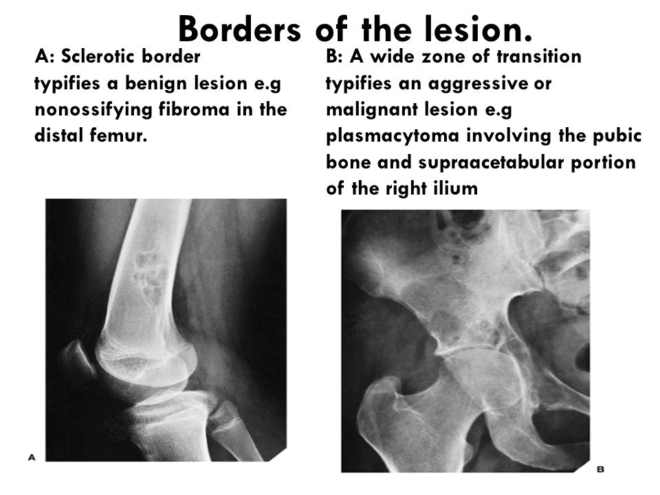 Borders of the lesion. A: Sclerotic border