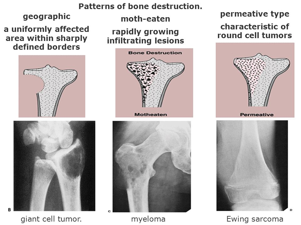 Patterns of bone destruction. permeative type