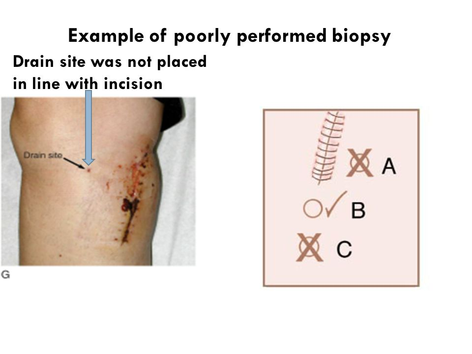Example of poorly performed biopsy