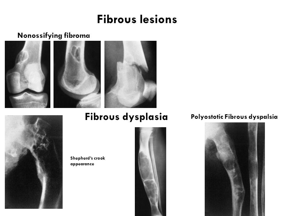 Fibrous lesions Fibrous dysplasia Nonossifying fibroma