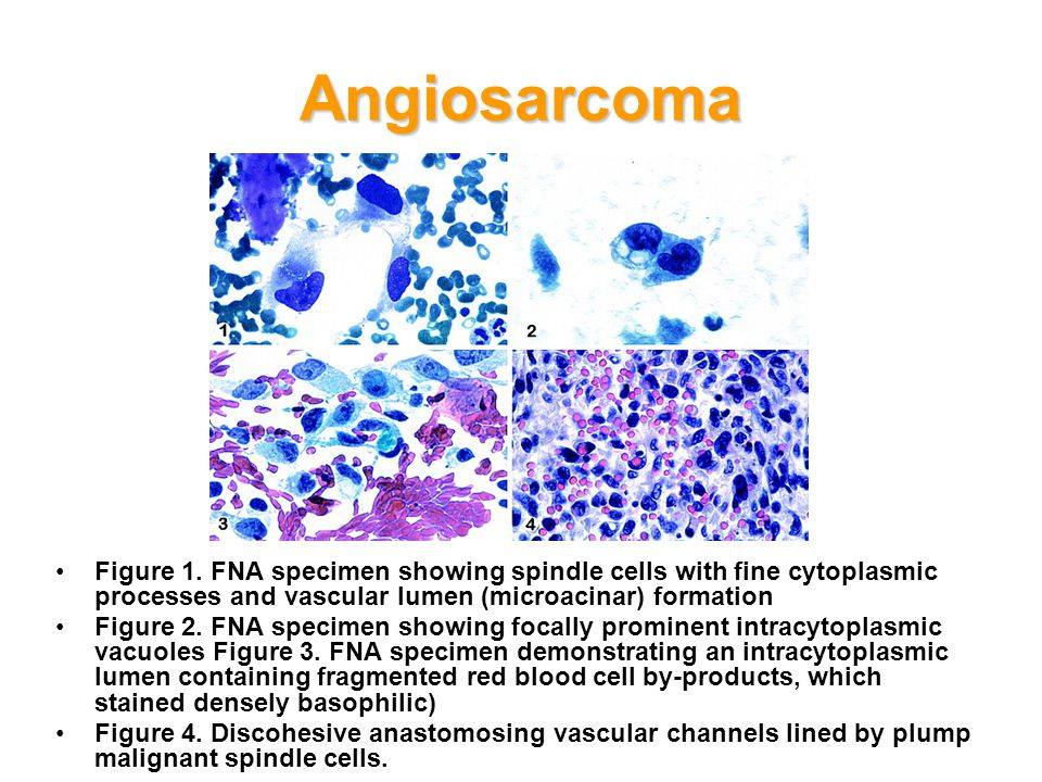 Angiosarcoma Figure 1. FNA specimen showing spindle cells with fine cytoplasmic processes and vascular lumen (microacinar) formation.