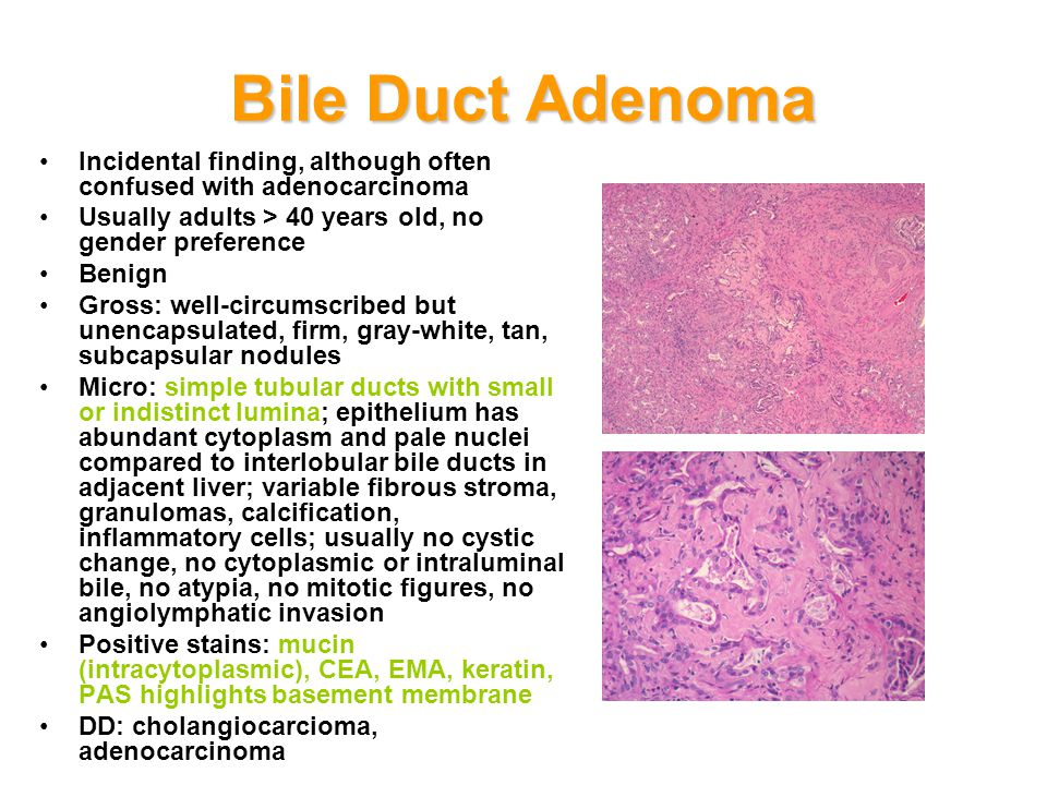 Bile Duct Adenoma Incidental finding, although often confused with adenocarcinoma. Usually adults > 40 years old, no gender preference.