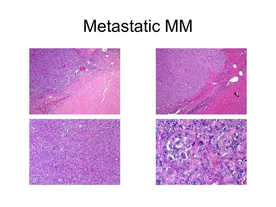 Metastatic MM