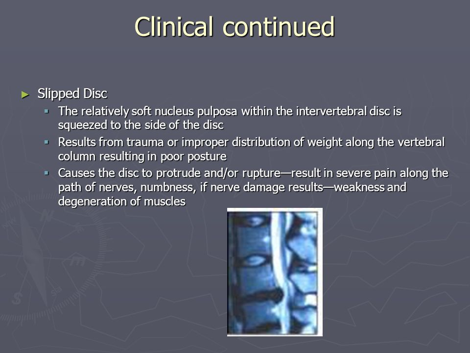 Clinical continued Slipped Disc