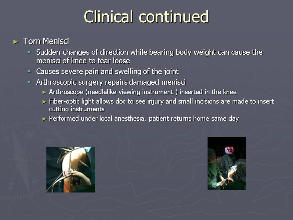Clinical continued Torn Menisci