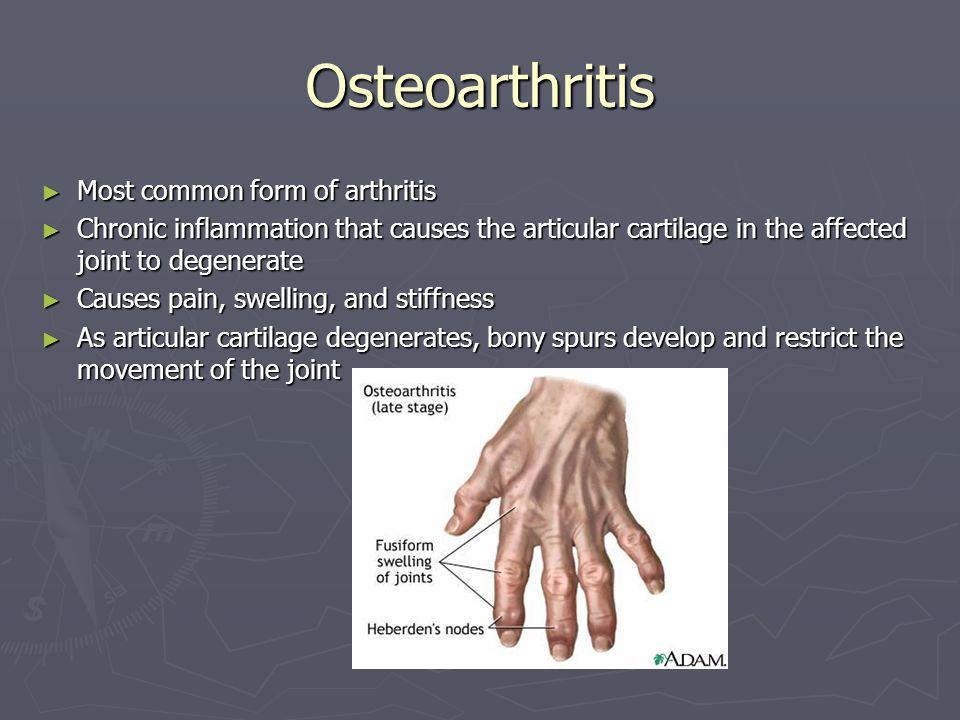 Osteoarthritis Most common form of arthritis