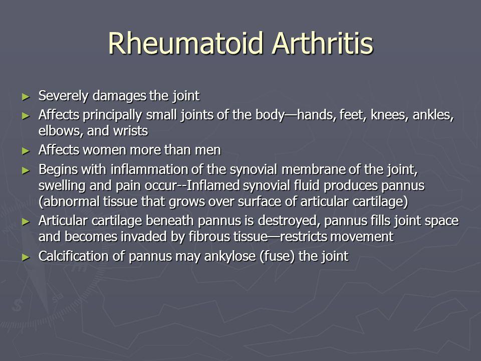 Rheumatoid Arthritis Severely damages the joint