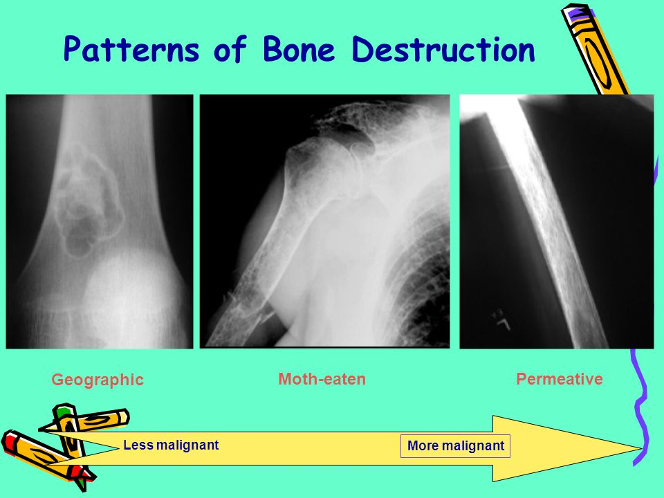 Patterns of Bone Destruction