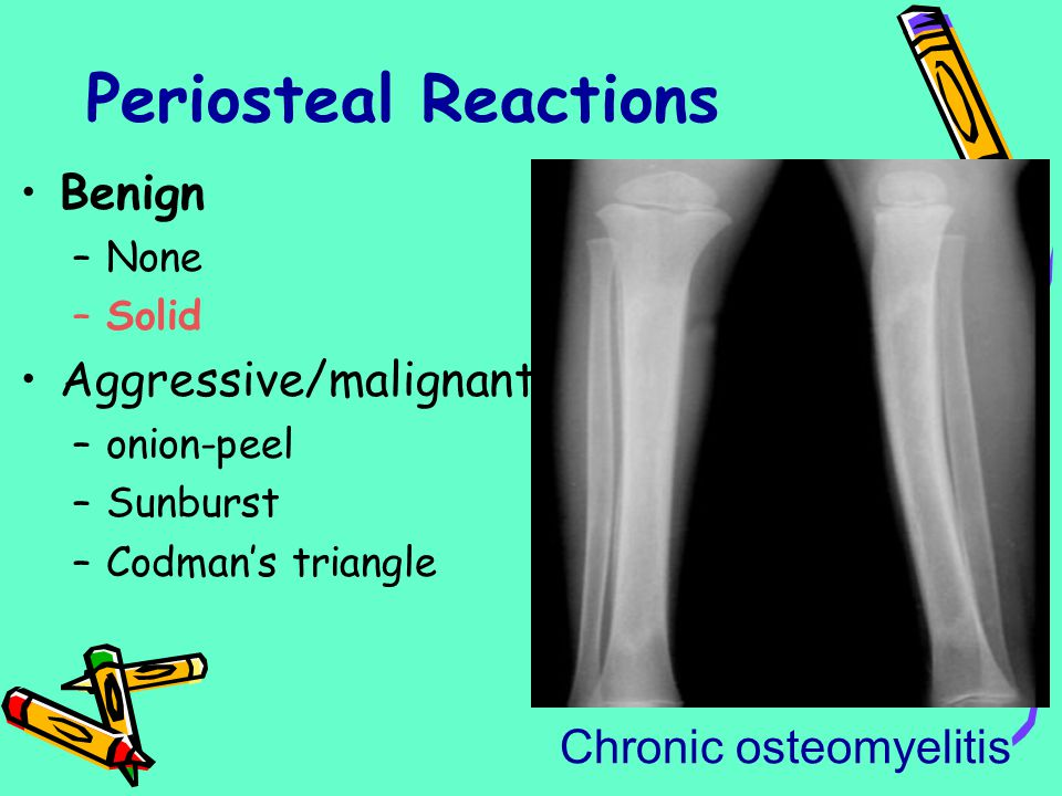 Periosteal Reactions Benign Aggressive/malignant Chronic osteomyelitis