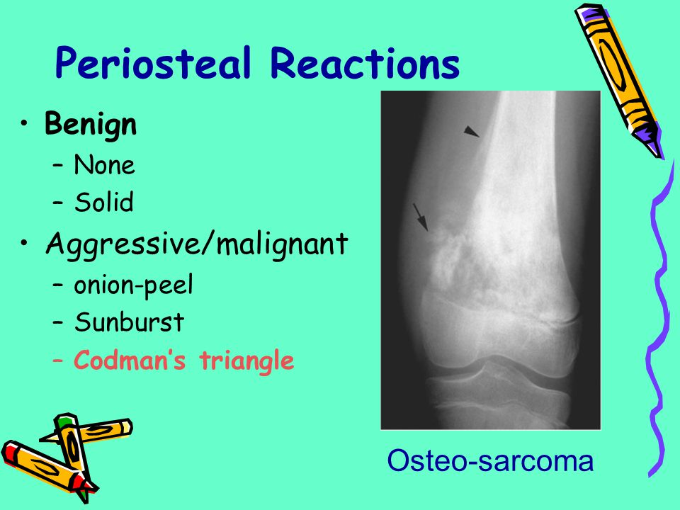Periosteal Reactions Benign Aggressive/malignant Osteo-sarcoma None
