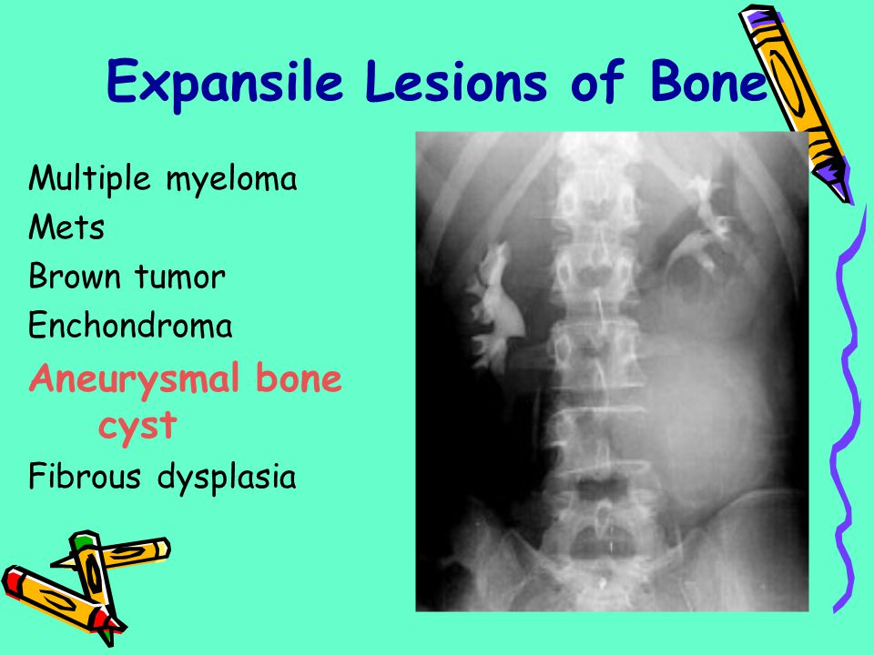 Expansile Lesions of Bone