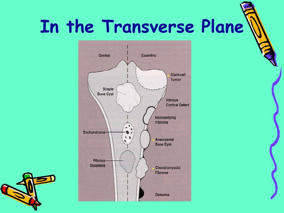 In the Transverse Plane