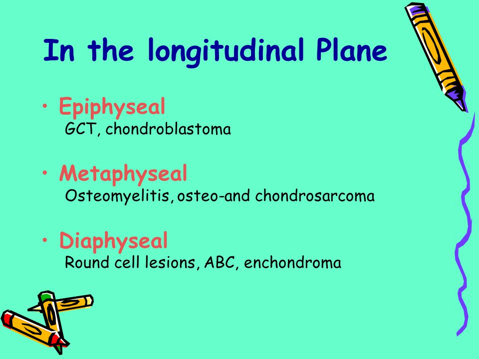 In the longitudinal Plane