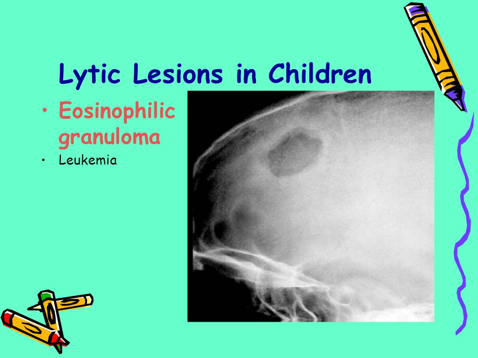 Lytic Lesions in Children