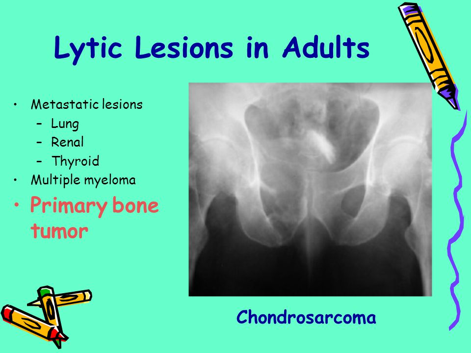 Lytic Lesions in Adults