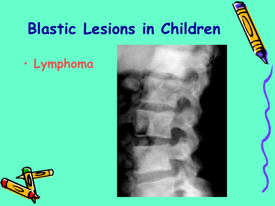 Blastic Lesions in Children