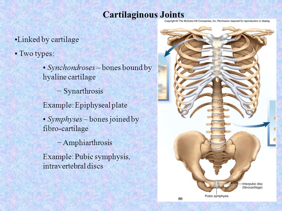 Cartilaginous Joints Linked by cartilage Two types: