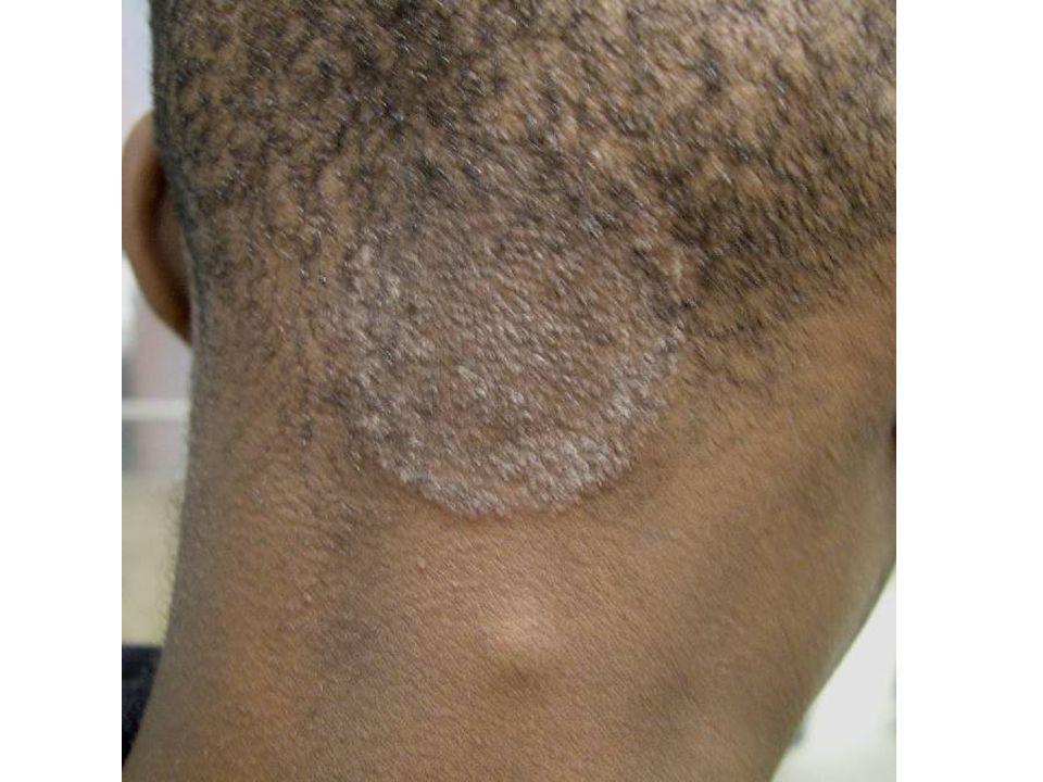 Ringworm of scalp, Tinea capitis