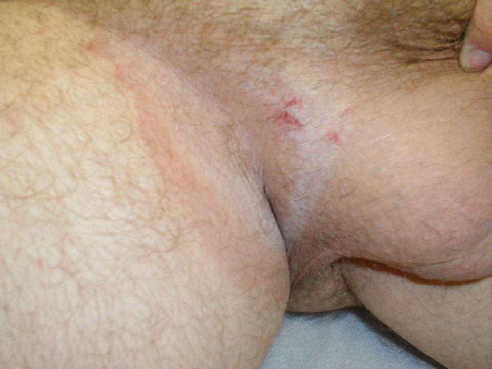 Tinea cruris, or jock itch