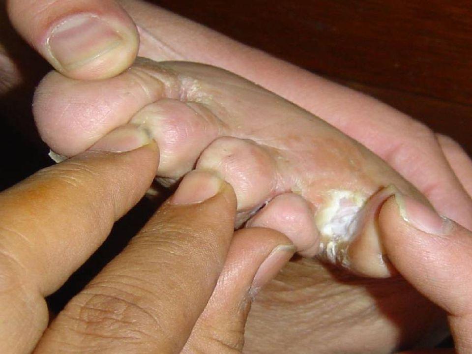 Athlete's foot, or tinea pedis.