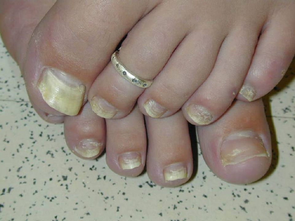 Onychomycosis (Note the LACK of the word tinea)