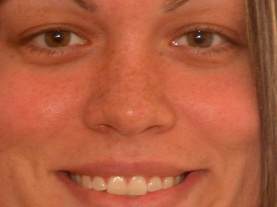 Freckles (ephelis)